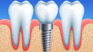 Dental implants market size exceeded €2.7bn | SciTech Europa