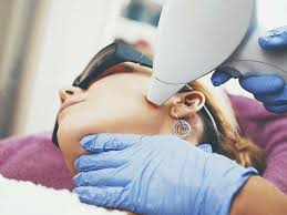 laser hair removal side effects and risks