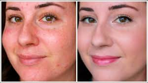 how to cover redness you