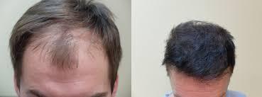 case study hair transplant poland brad