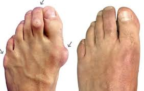 are you dealing with bunion pain foot