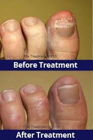 fungal nail laser therapy kw foot and