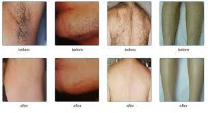 laser hair removal horizon cal