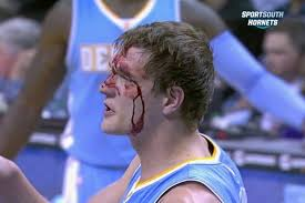 Timofey Mozgov Bloodied by Errant Elbow from Bismack Biyombo | Bleacher  Report | Latest News, Videos and Highlights