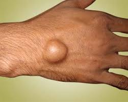 Ganglion Cyst Symptoms, Causes, & Homeopathic Treatments - WelcomeCure