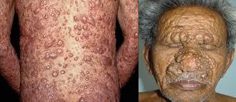 """Resultado de imagen de Sinaloa, primer lugar en casos de lepra"""""""
