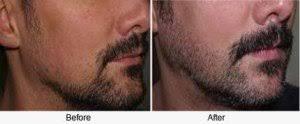 can dermarolling stimulate beard growth