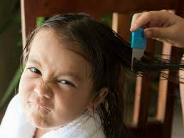 head lice home remes you you can