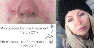 rosacea before and after aj makeup