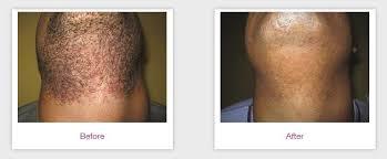 laser hair removal dark skin