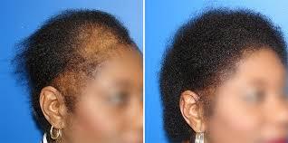 hair loss in african american women