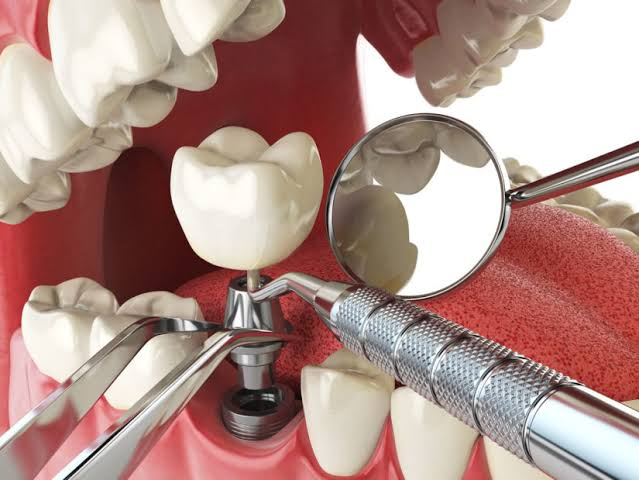 Image result for dental implants""