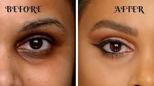 cover dark circles and pigmentation