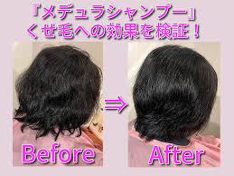 メデュラシャンプー「くせ毛」への効果を、現役美容師が画像付きで実証考察。処方内容も公開!   美テラシー