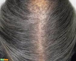 cure hair loss due to an inflamed scalp