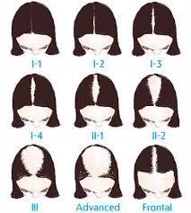 female hair restoration houston hair