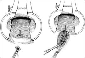 Benign anorectal disease: hemorrhoids, fissures, and fistulas. - Abstract -  Europe PMC