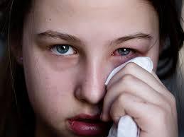 how long does pink eye last viral vs