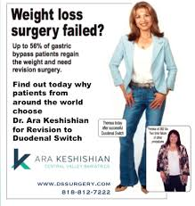 revisional weight loss surgery dssurgery
