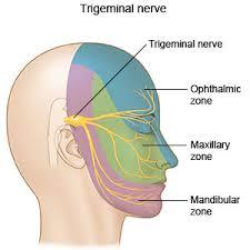 trigeminal neuralgia what you need to