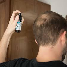 wnt act hair loss s