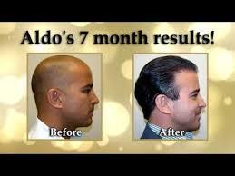 dr brett bolton hair transplant