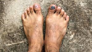 toenail dremel runner s toe quick fix