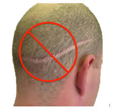 fue follicular unit extraction with