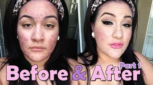 foundation routine for severe acne