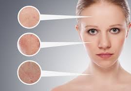 electrolysis hair removal the facts