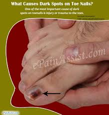 what causes dark spots on toenails and
