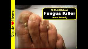 home remedy for toenail fungus