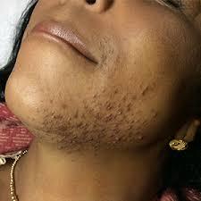 laser hair removal melbourne fl