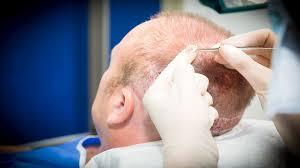 إليكم 6 معلومات عن عملية زراعة الشعر بتقنية الاقتطاف