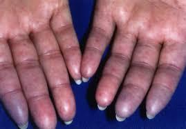 scleroderma harvard health