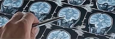 Lesiones cerebrales ocupantes de espacio con efecto de masa en los ...