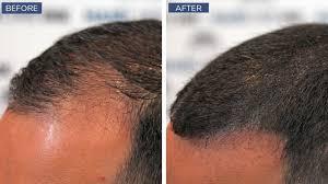 scalp micropigmentation advanes