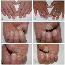 nail psoriasis an updated review and
