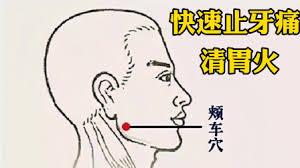 颊车穴:祛胃火、止牙痛