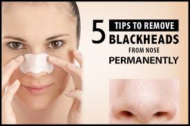 remove blackheads from nose permanently