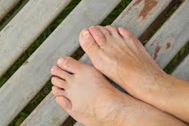 relieve your bunions without surgery