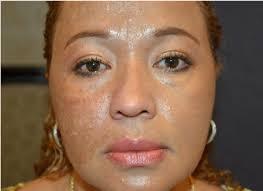 melasma after half face treatment