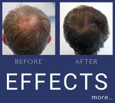 fue hair transplant poland dr piotr