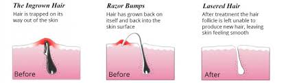 laser hair removal acne