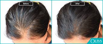 thyroid disorder hair loss how to