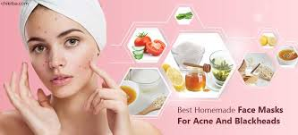 4 best homemade face masks for acne and