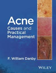 acne causes and practical management