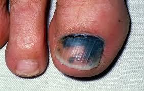 nail problems nhs