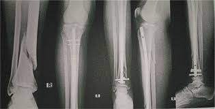 proximal and distal tibial fractures