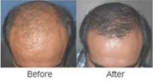 hair transplant in delhi in krishna